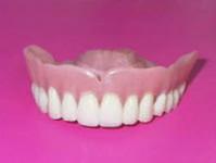 Зубные протезы ДиАстом