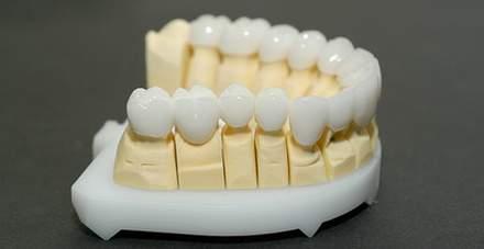Коронки из оксида циркония в составе макета нижней челюсти