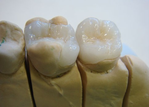 Керамическая вкладка в модели зуба