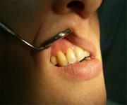 kista-zuba