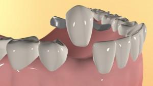 Реплантация зуба с шинированием
