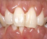 teeth_growth